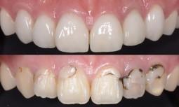 牙齒有點黃,而且之前補的蛀牙黑黑的---局部矯正、美白、全瓷貼片、全瓷冠修復
