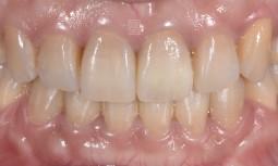 牙齒外傷撞斷,一定要拔掉嗎?——矯正排正牙齒,並且將牙齒拉出後,用纖維釘與全瓷冠修復。