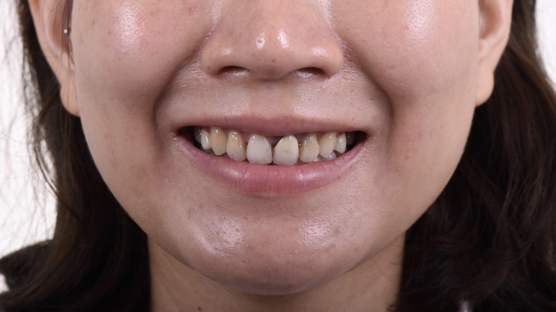 瓷牙冠邊緣變色