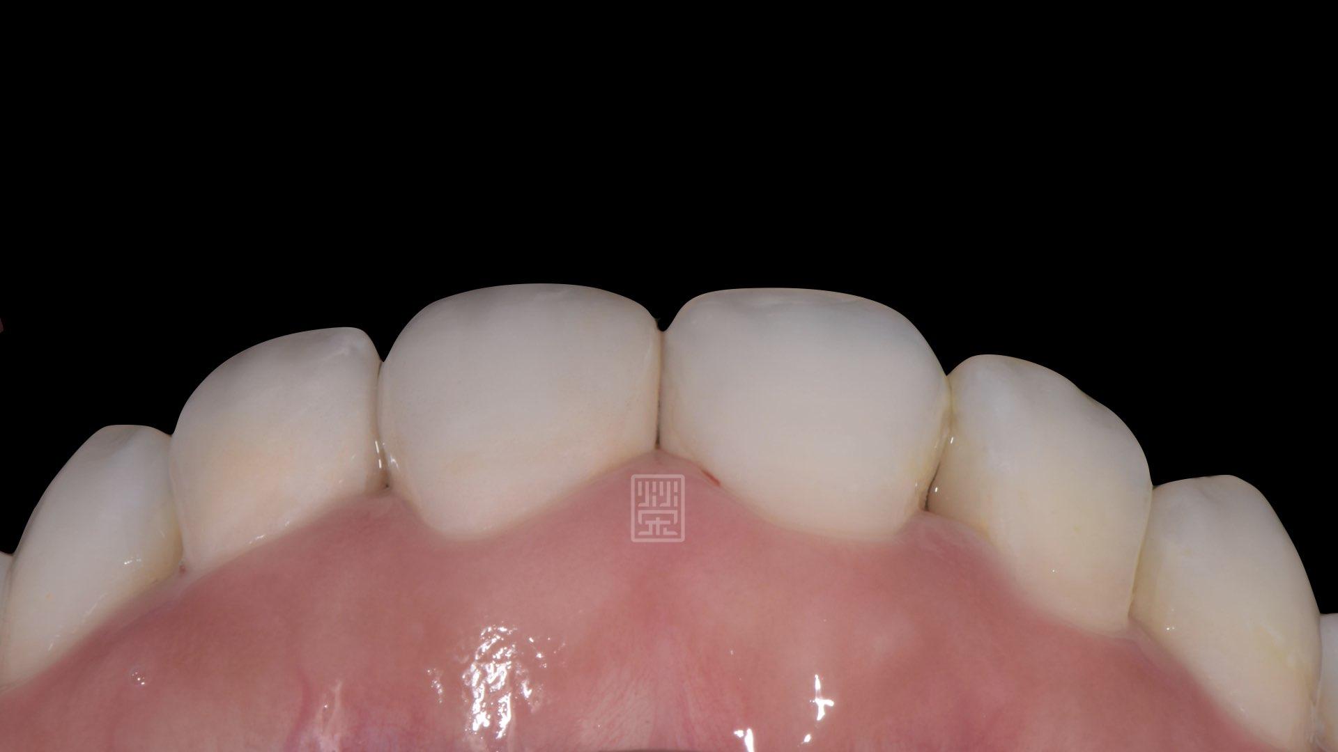 牙齦、牙齒、笑容和諧呈現