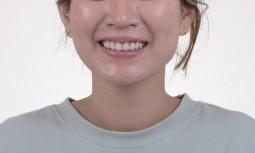 牙齒黑黑的,笑起來不好看——美學樹脂、美白、全瓷冠修復