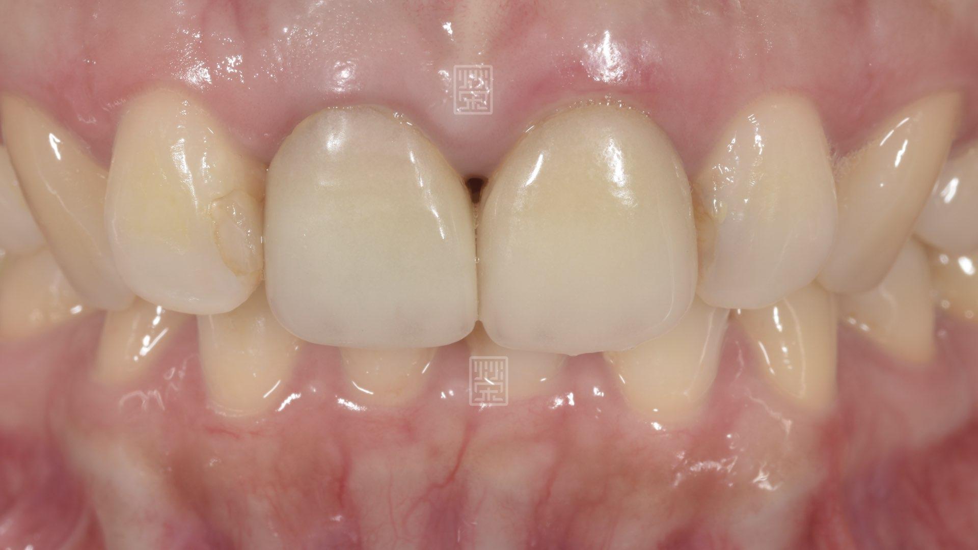 全瓷冠變色,牙齦萎縮
