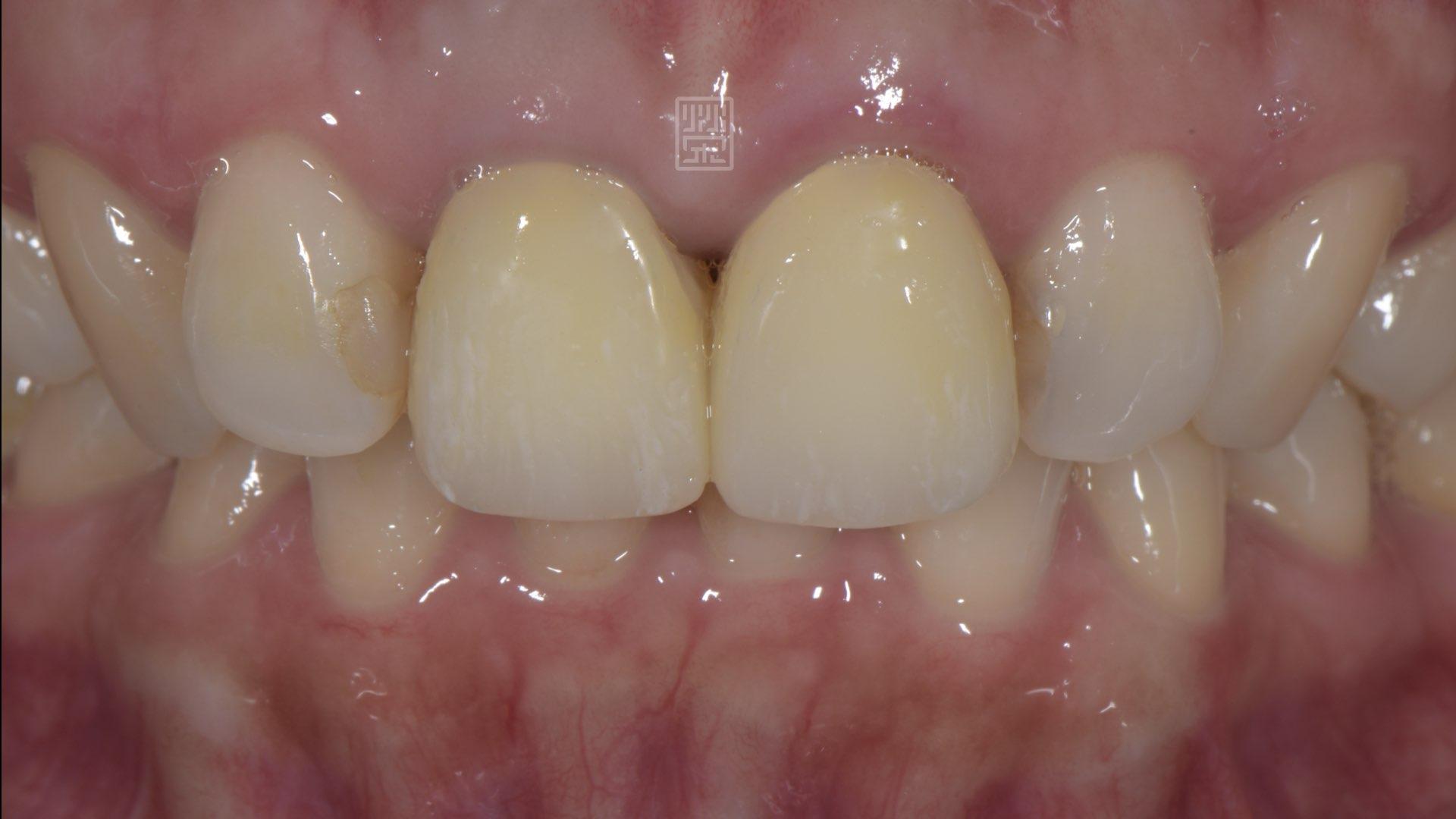 更換成臨時假牙