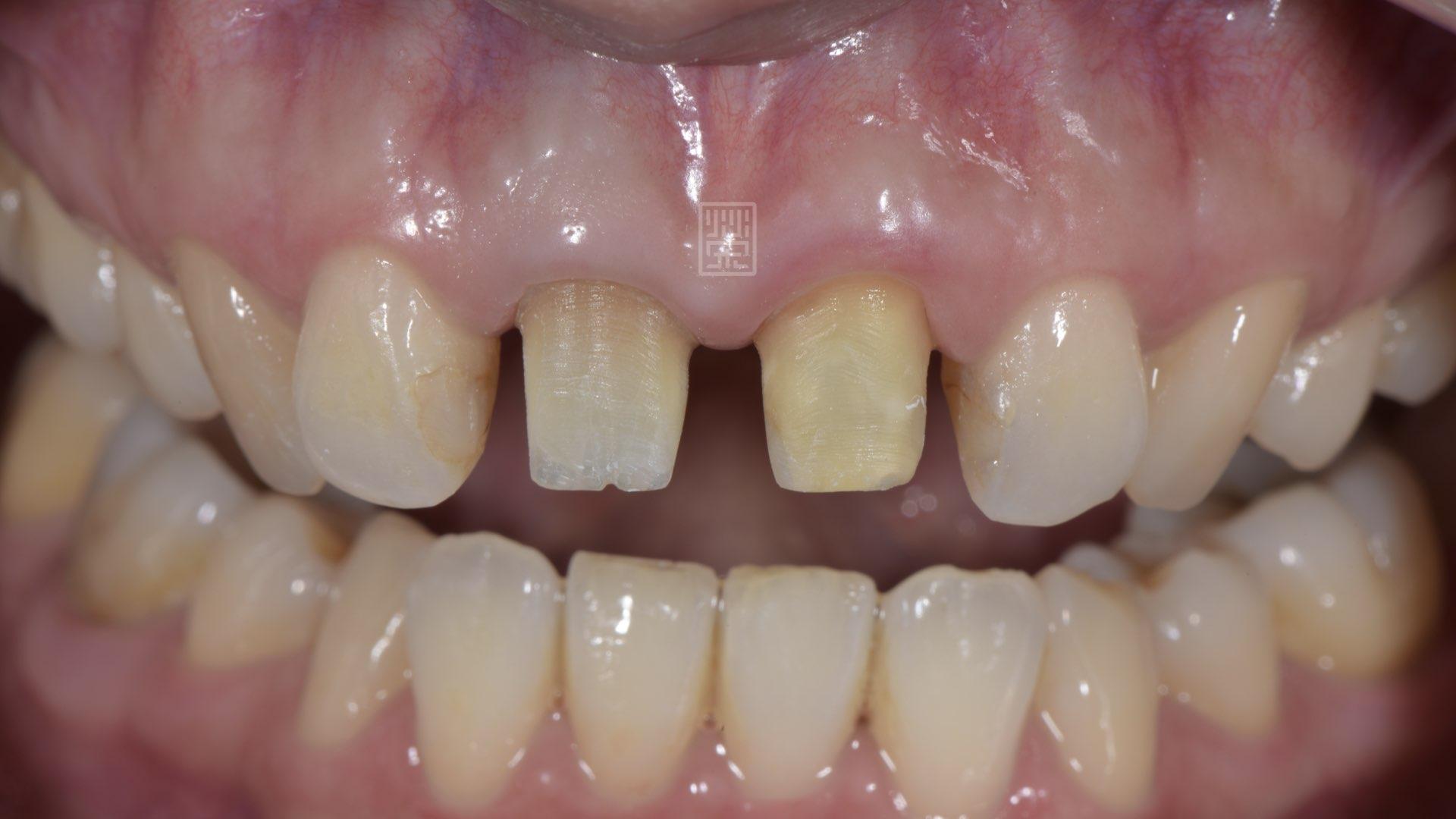 牙齦穩定後,發現門牙中間的牙齦萎縮
