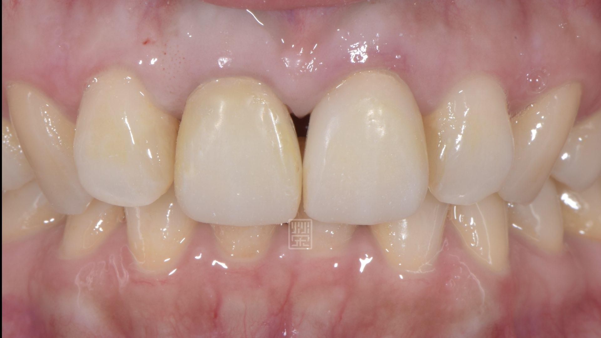 將黑三角縫再打開,以準備牙齦手術填補空間