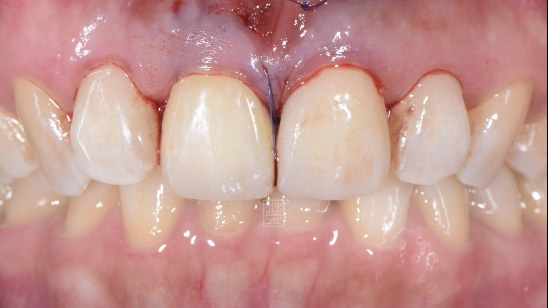 牙齦手術,將黑三角縫填補