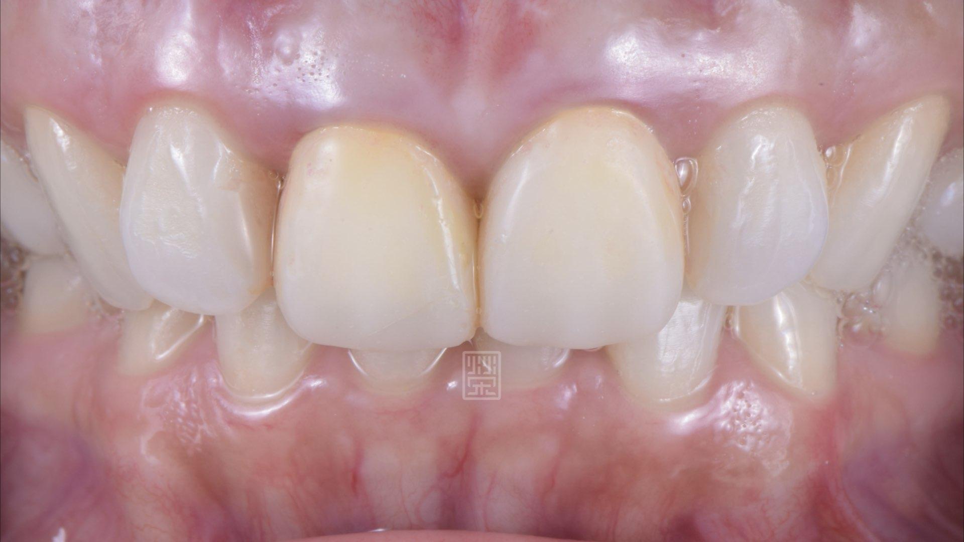 六週後牙齦穩定