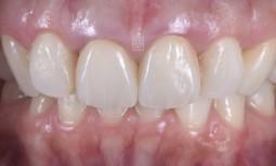我的全瓷冠裡面破掉了,牙齦處黑黑的————全瓷冠合併牙齦再生手術
