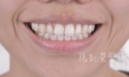 牙齒藥劑美白 I