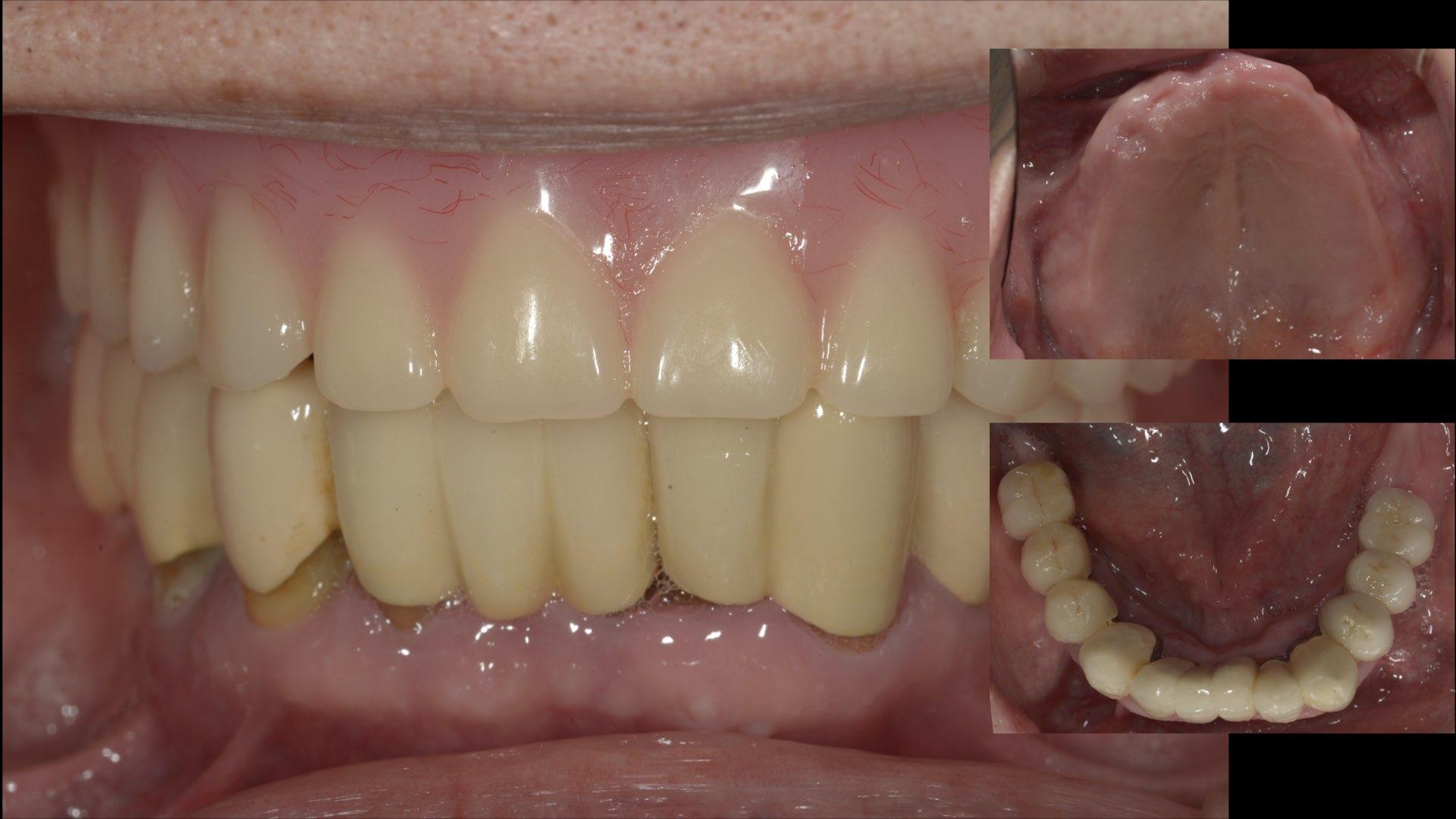 上顎全口義齒併下顎局部活動義齒