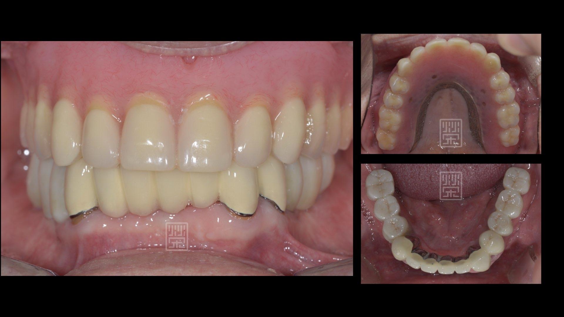 下顎利用局部固定義齒與植牙固定義齒修復