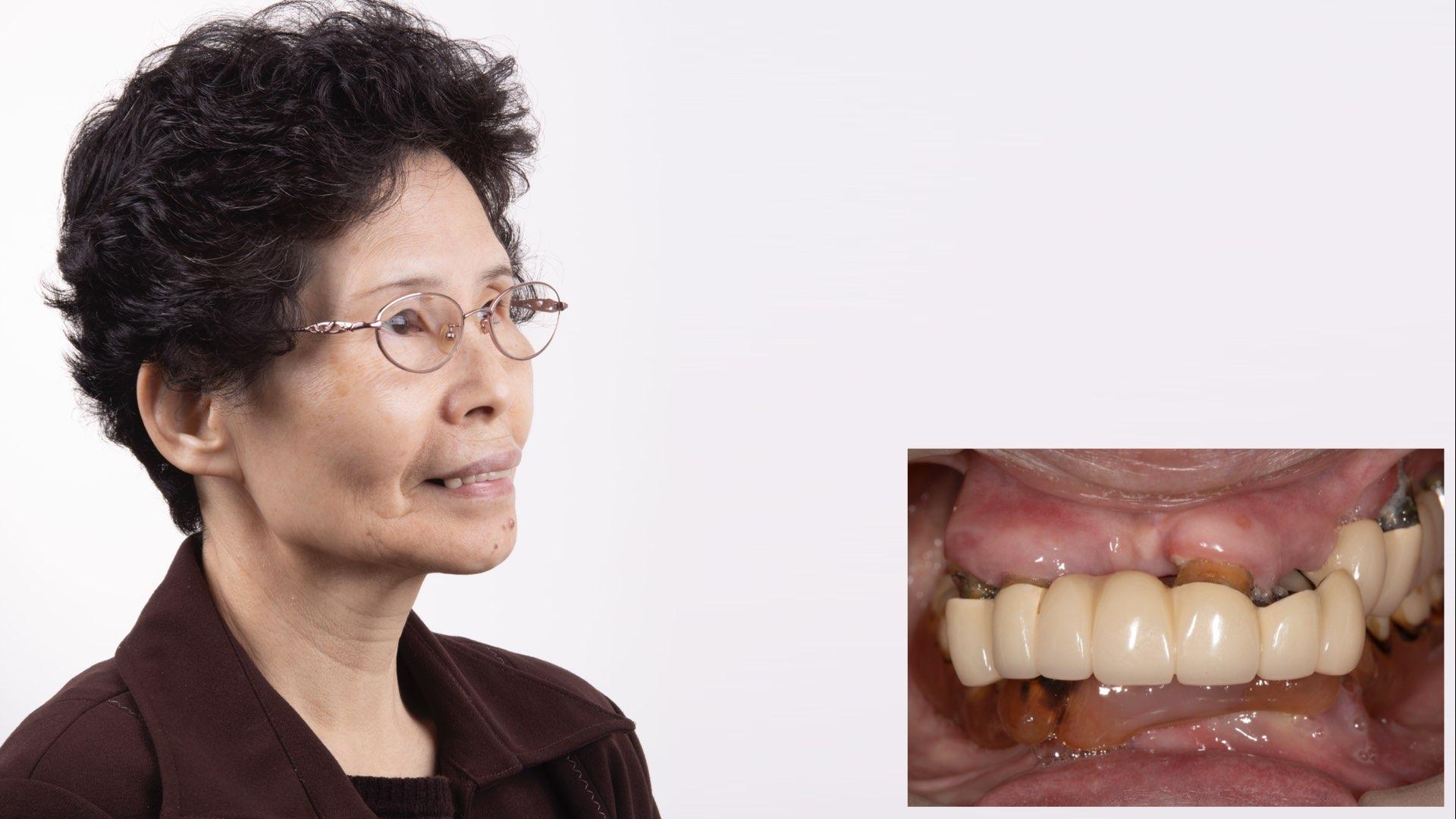 舊義齒下牙根狀況不好