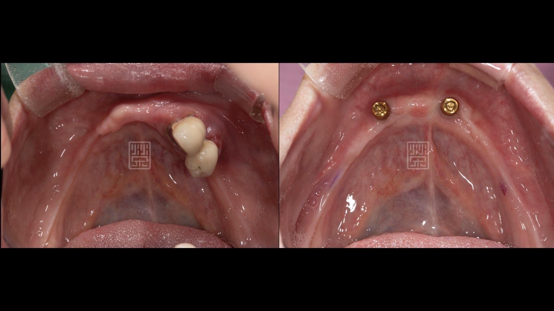 利用兩顆植牙穩定全口義齒