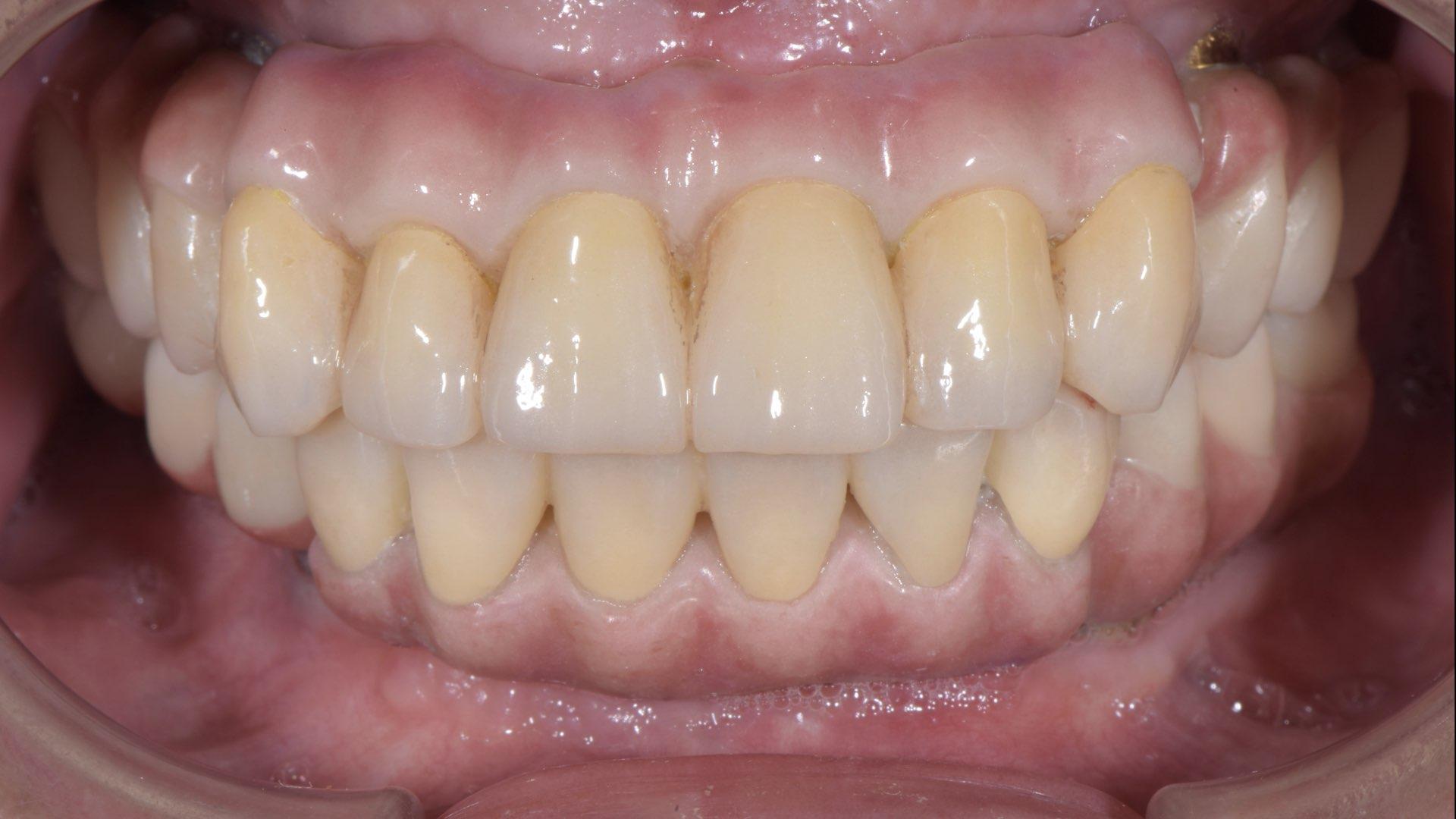 全口植牙固定義齒