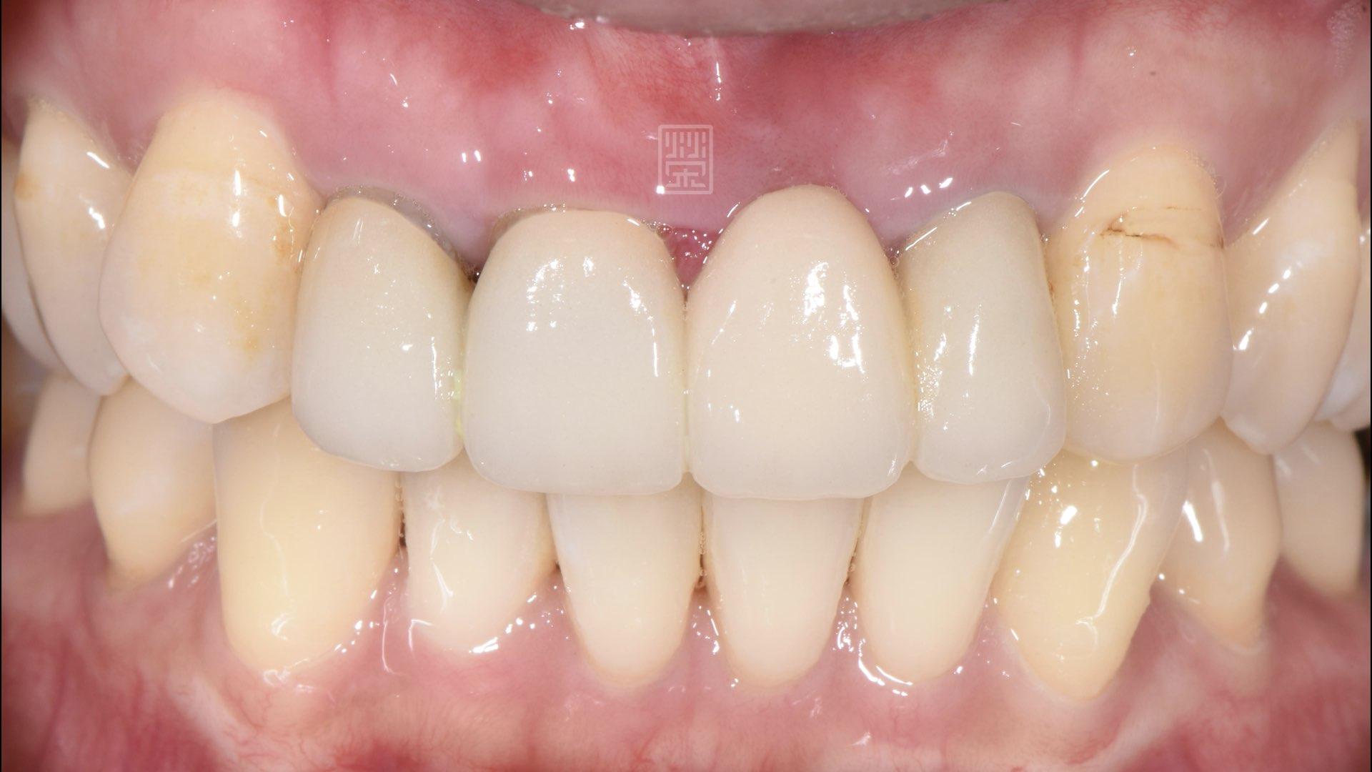牙齦萎縮,黑邊露出