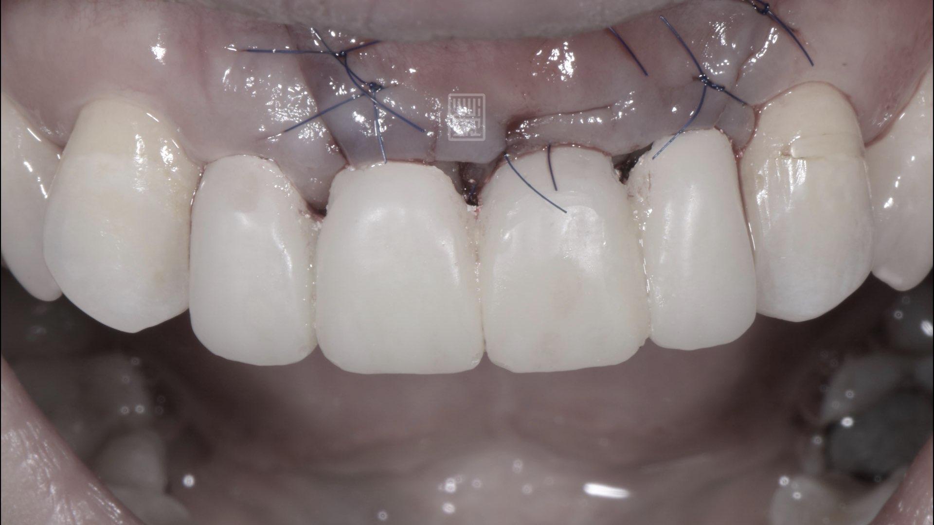 牙齦移植手術
