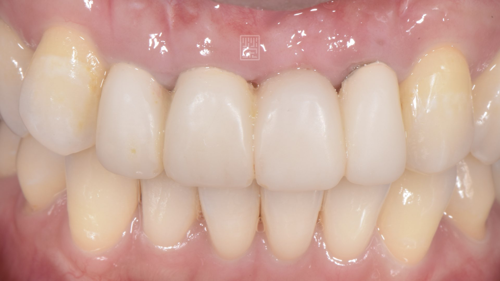 牙齦癒合且塑形完成