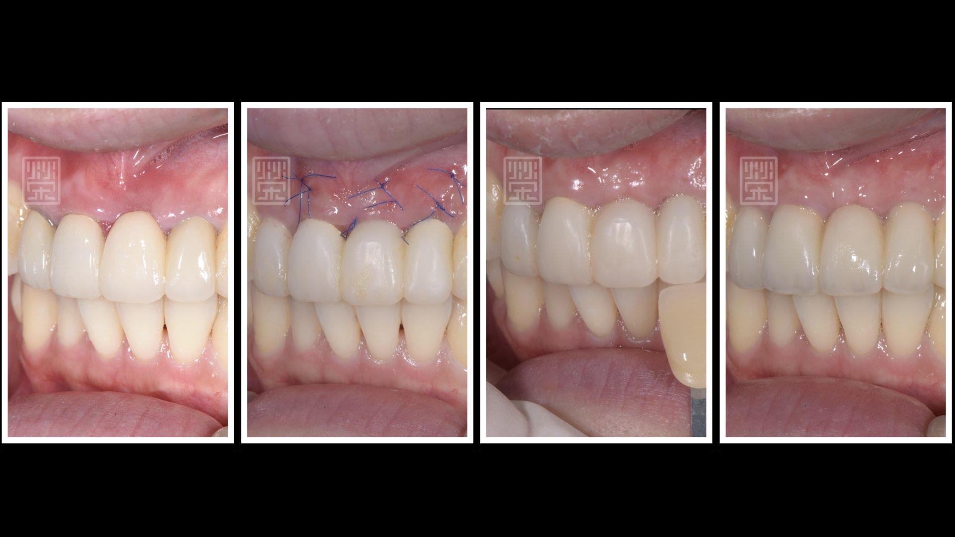 牙齦移植流程