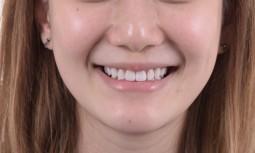 矯正後,覺得牙齒黃黃的————全瓷貼片