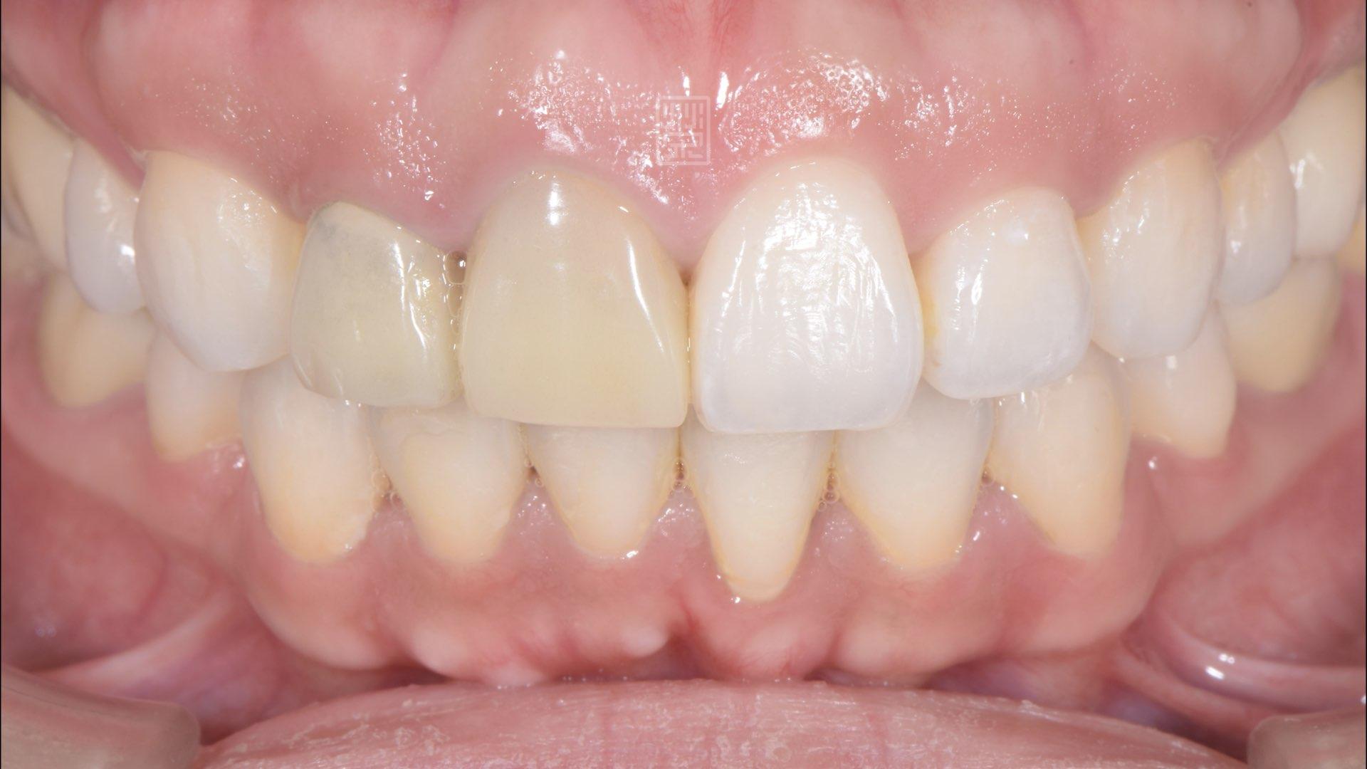 矯正後臨時假牙變色