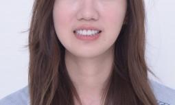 我覺得我笑起來不是很好看————牙齦整形併全瓷貼片