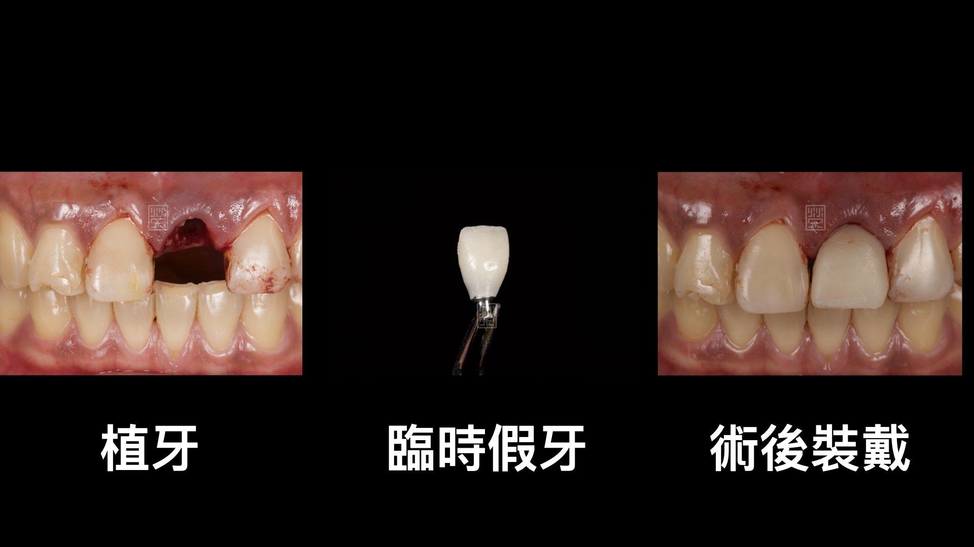 牙齒拔除,臨時假牙立即製作