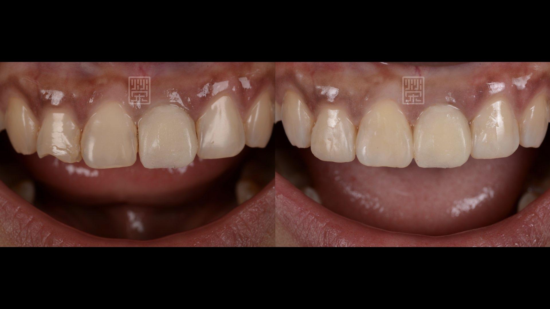 重新修復臨牙蛀牙與型態