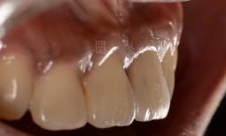 我咬了一口排骨,牙齒『啪』ㄧ聲,就鬆掉了————植牙修復