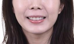 我的牙齒怎麼洗都是黃黃的————全口美白貼片