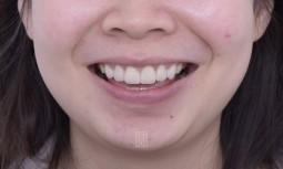 我的牙齒有點小------全瓷冠貼片合併牙齦整形術