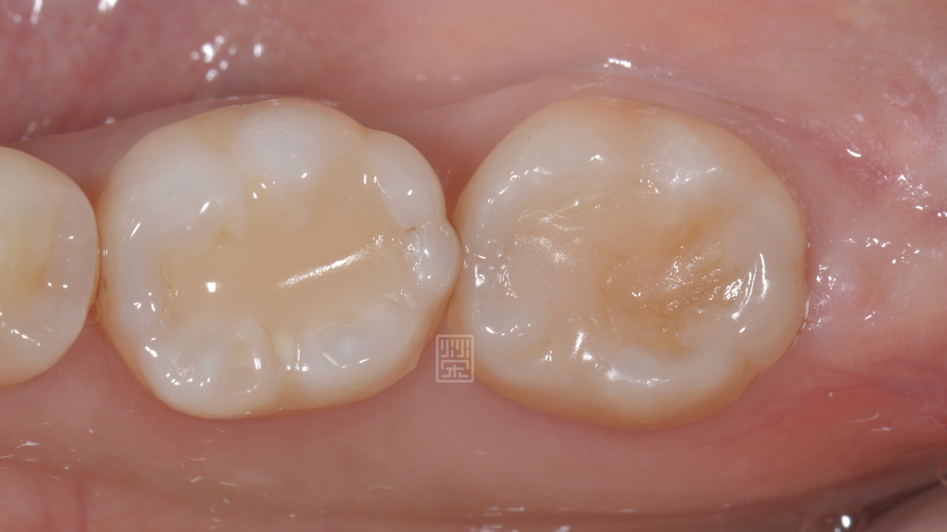 牙齒最後有填補