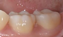 牙齒咬起來酸酸的---牙齒裂了