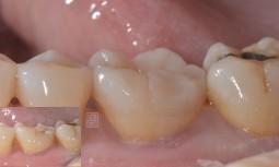 牙齒咬起來有點痛的---牙齒裂了