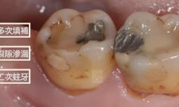 我的牙齒好像乞丐裝,縫縫補補好多次---多次填補再蛀牙