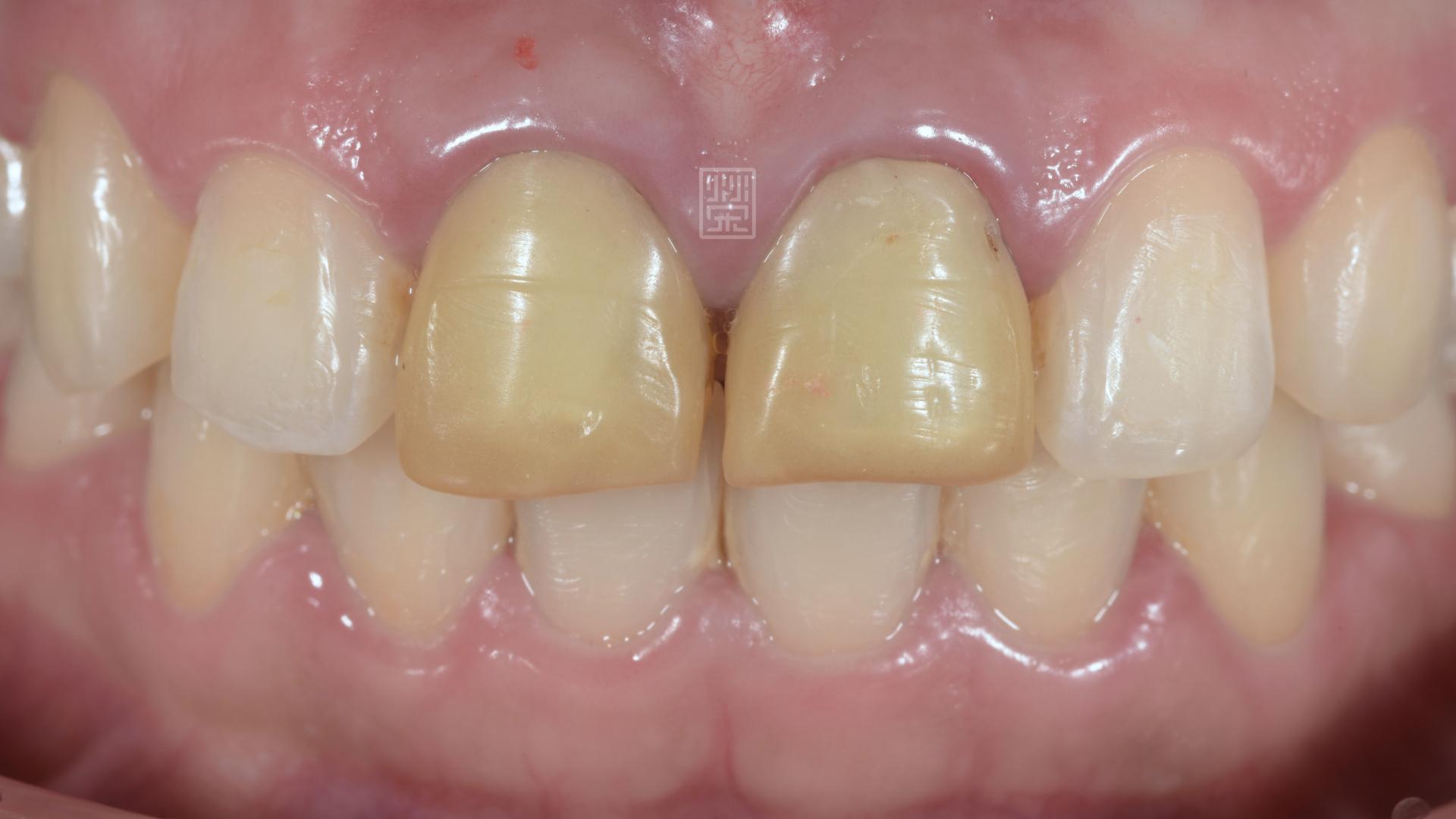 經歷矯正後,臨時假牙變黃