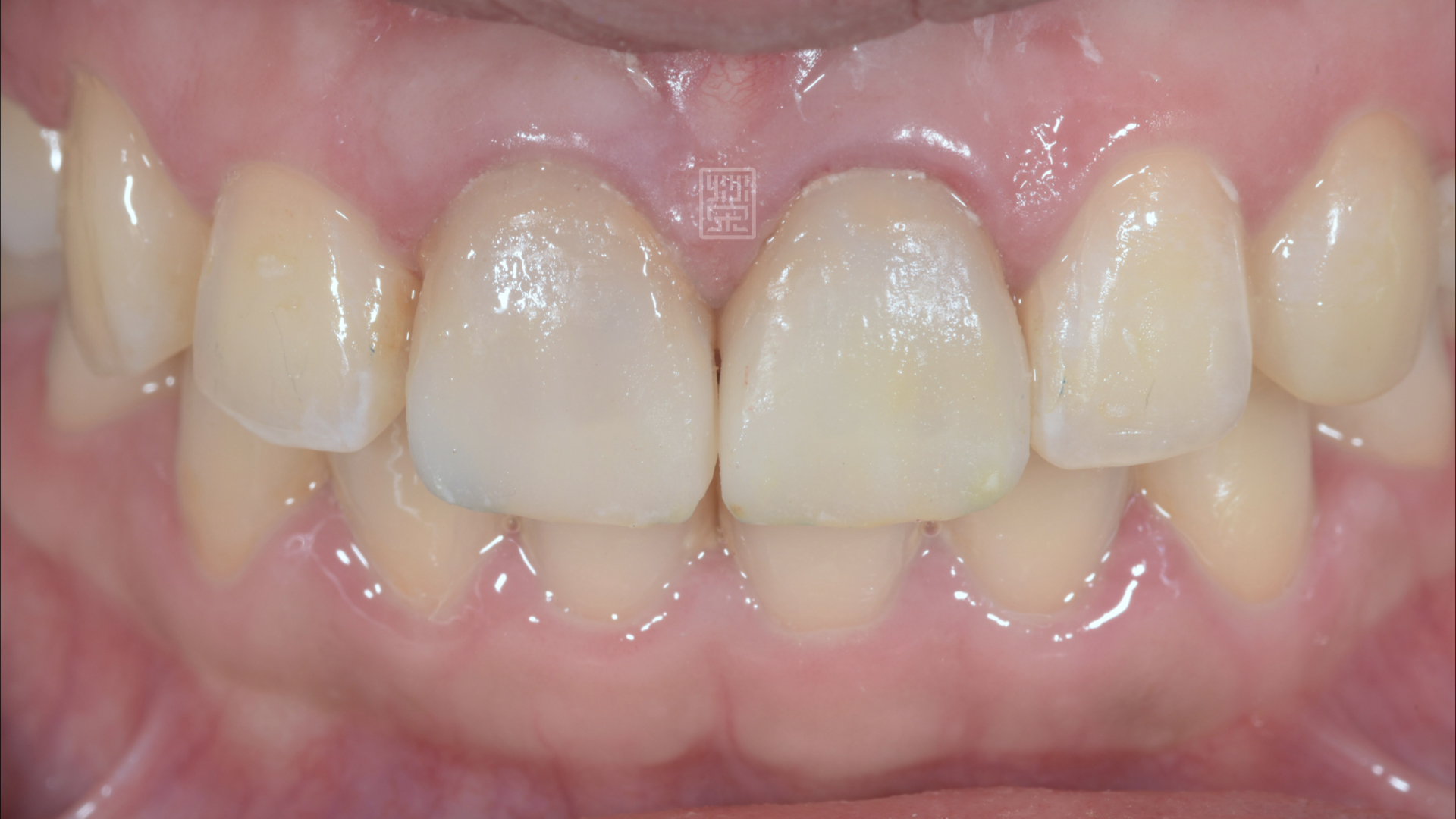 換上新的臨時假牙