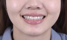 我的兩顆大黃牙怎麼辦?---美白全瓷冠修復