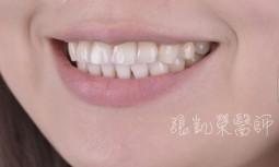 牙齒藥劑美白 II