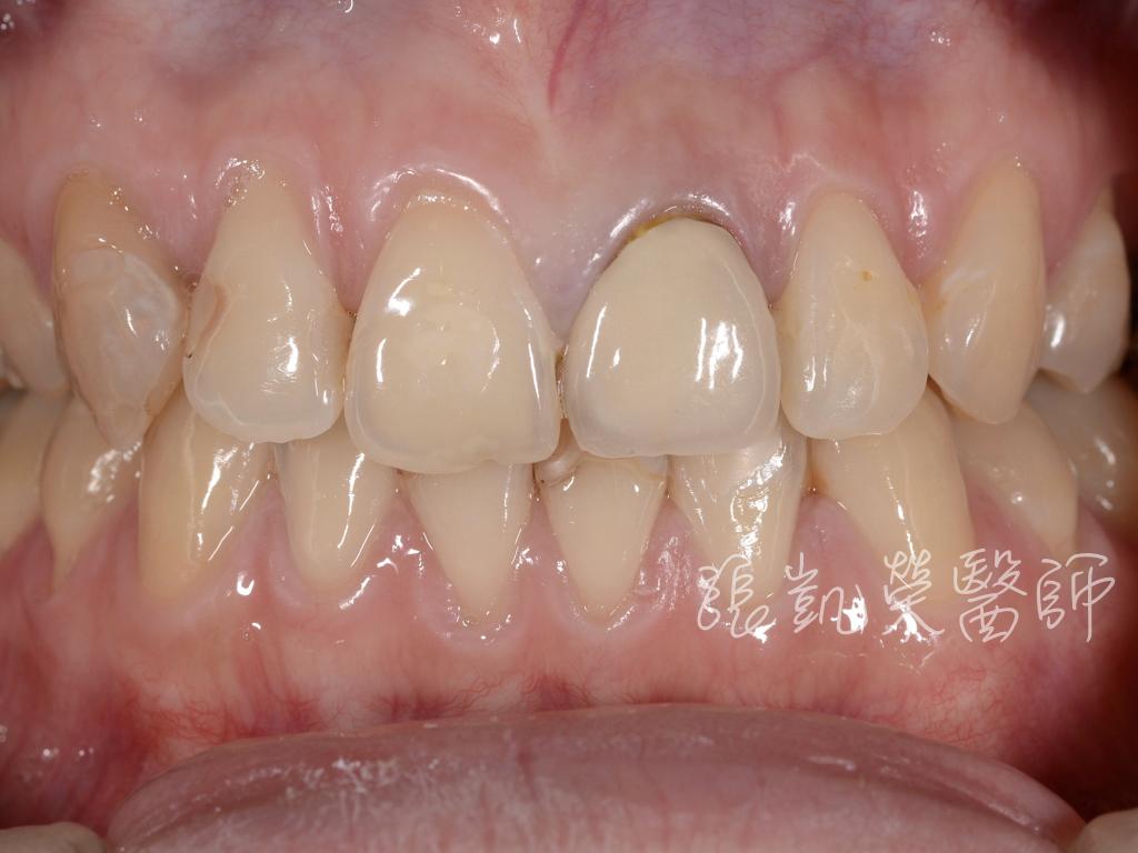 治療前,舊假牙邊緣黑黑的