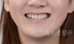 假牙變色,齒色暗沈