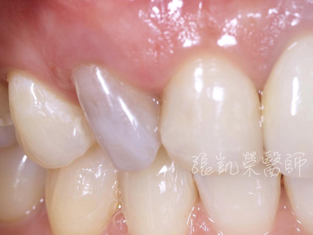 齒內美白前,牙齒變色