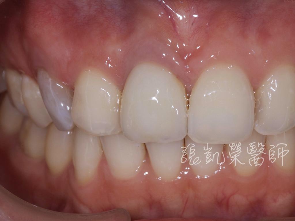 齒內美白前,犬齒變色很明顯