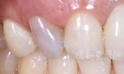 牙齒突然變黑---齒內美白